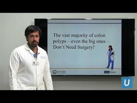 Treatment Options for Colon Polyps | UCLA Digestive Diseases