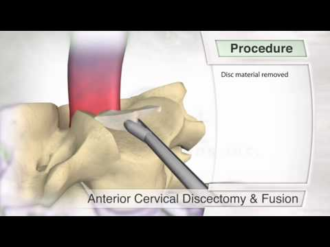 Anterior Cervical Fusion Procedure