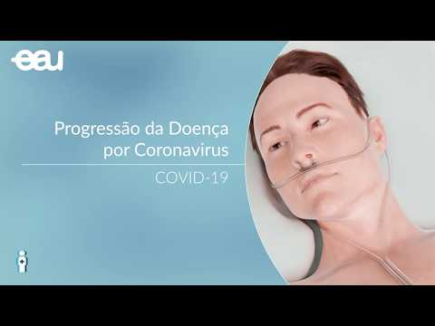 COVID-19 - Progressão