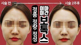 더모톡신 미간보톡스 시술 영상 톡스앤필 삼성점 대치동 …