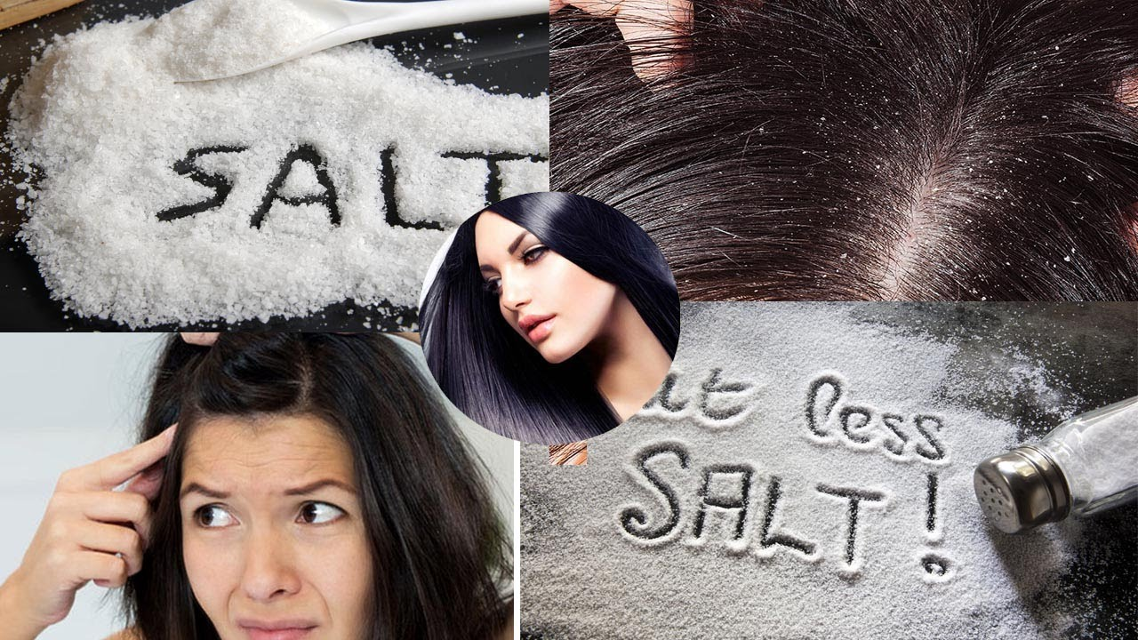 How to get rid of dandruff: the secrets of beautiful hair