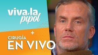 Gonzalo Cáceres realizó una cirugía instantánea a Felipe Vidal - Viva La Pipol