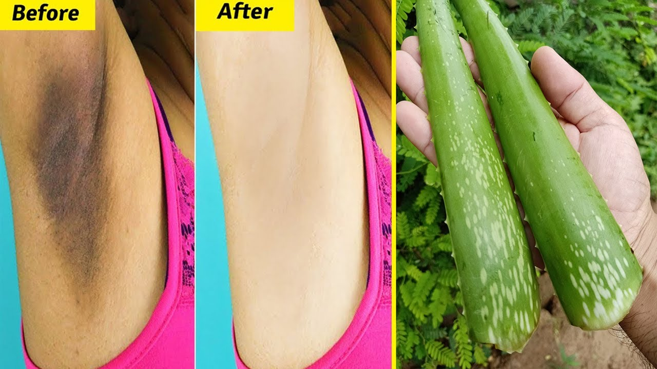 How To Whiten Dark Underarms Instantly Permanently | 100% Works At Home