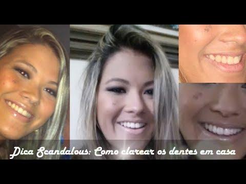 Como Clarear Os Dentes Em Casa Oral B Whitestrips Youtube