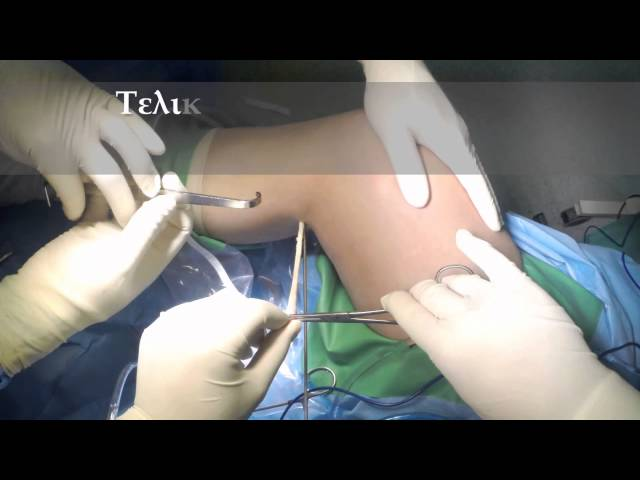 Οπίσθια-έσω MIS λήψη τενόντιων μοσχευμάτων - Συνδεσμοπλαστική πρόσθιου χιαστού - Δρ. Ν. Ροϊδης