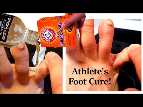 👣 Athlete's Foot Part 3: Baking Soda + Rubbing Alcohol