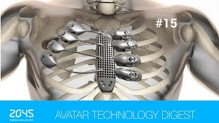 #15 Avatar Technology Digest / Human head transplant edges closer to reality / Robot for asteroids