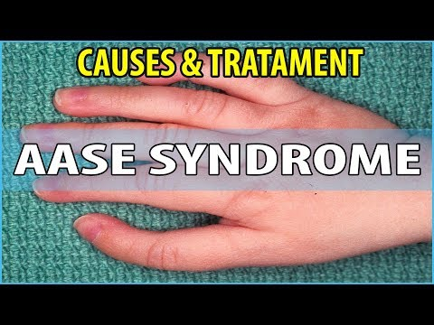 What is  Aase Syndrome, Causes, Symptoms and Treatments