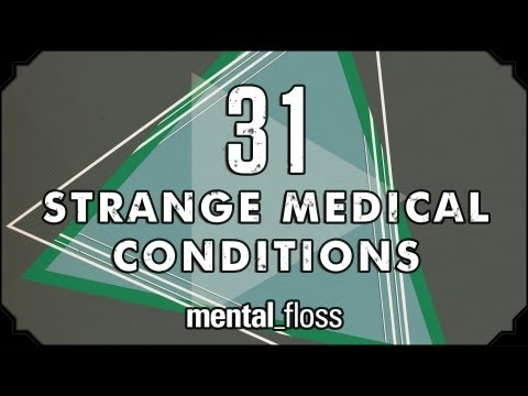 31 Strange Medical Conditions  Summer Bummer Series pt. 1  mental_floss on YouTube (Ep.13)