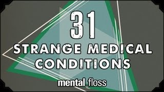 31 Strange Medical Conditions  Summer Bummer Series pt. 1  mental_floss on YouTube (Ep.13)