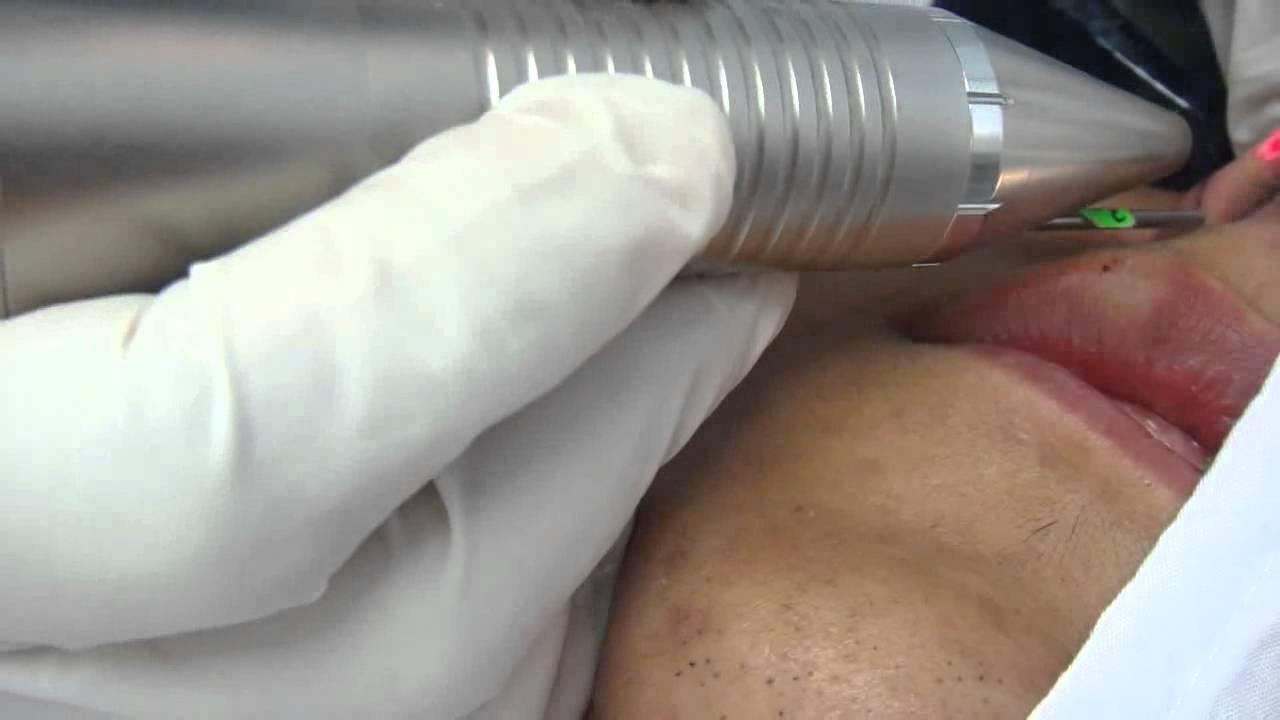 El tratamiento varikoza habarovsk las revocaciones