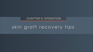 Chapter 5. 8 Skin Graft Recovery Tips