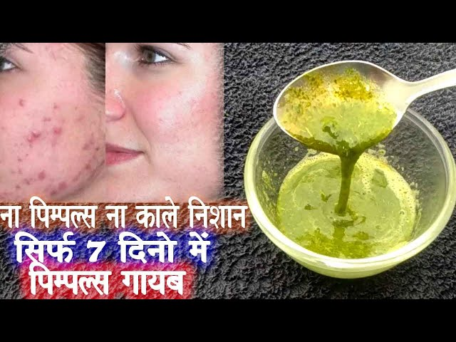 Apply This Aloe Vera Neem Face Wash will Remove Pimples & Scars from the Roots (100% Results)