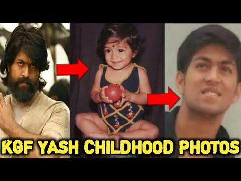 Rocking Star Yash Childhood Photos | KGF Yash | Yash Baby Photos | Exclusive Ctv Karnataka