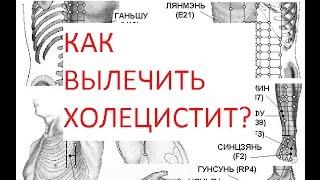 Как вылечить холецистит?