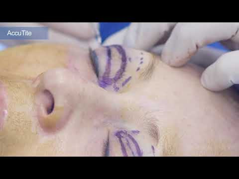 Using AccuTite as an Adjunct to Blepharoplasty and FaceLift (with Marking)