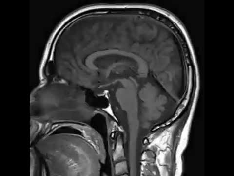 MRI CERVICAL SPINE WITH WHOLE SPINE SCREENING - YouTube