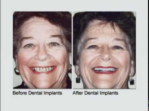 Dental Implants Change Lives