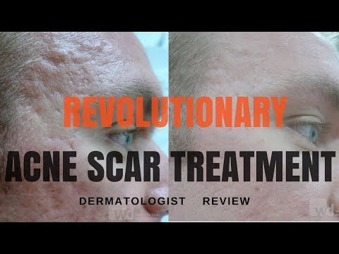 hqdefault - Latest Treatments For Acne Uk