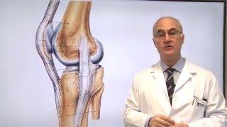 La parte de de en pierna inferior la hinchazón con rodilla lesión la