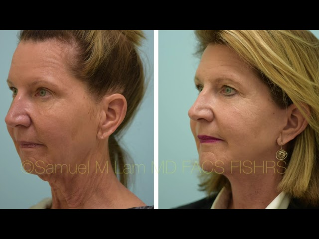 Dallas Facelift and Chin Augmentation Before and After Photos