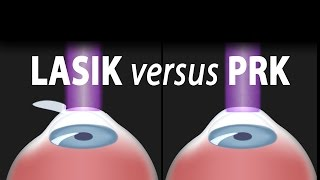 LASIK or PRK? Which is right for me? Animation.