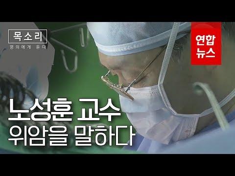 [명의에게 듣다] 위암환자의 희망 '3무 수술법'노성훈 교수 / 연합뉴스 (Yonhapnews)