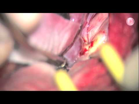 Surgical treatment of a large ruptured internal carotid artery bifurcation aneurysm