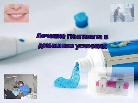 Лечение гингивита в домашних условиях