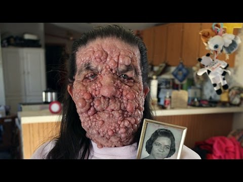 Bubble Gran, Woman Covered In Benign Tumours: Body Bizarre Episode 5