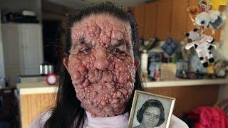 Bubble Gran, Woman Covered In Benign Tumours: Body Bizarre Episode 5