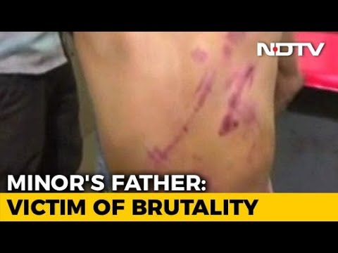 Postmortem Of Unnao Teen's Father Gives Horrific Account Of 14 Injuries