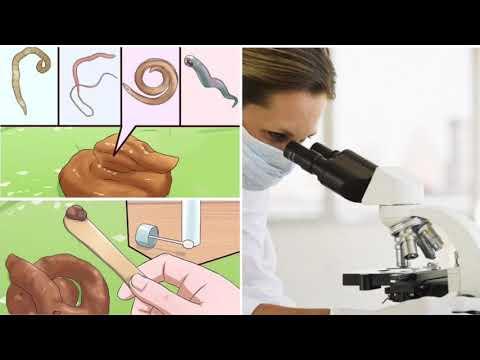 Проверь себя на гельминты ! Пути заражения и симптомы .  Тест на глисты