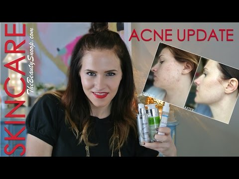 The best products for adult hormonal acne treatment / an acne update