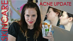 hqdefault - Top Acne Products For Adults