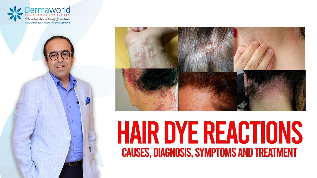 Hair Dye Reactions Causes Diagnosis Symptoms And Treatment Youtube