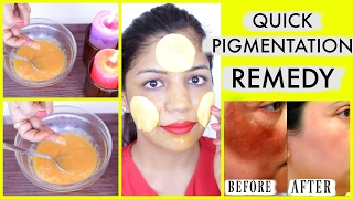 Skin Whitening Black Spots & Skin Pigmentation Treatment Natural Remedy | SuperPrincessjo