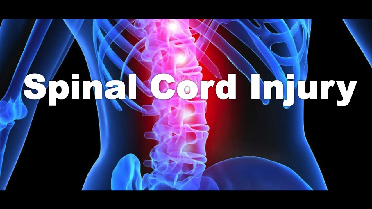 What is a spinal cord injury youtube what is a spinal cord injury sciox Images