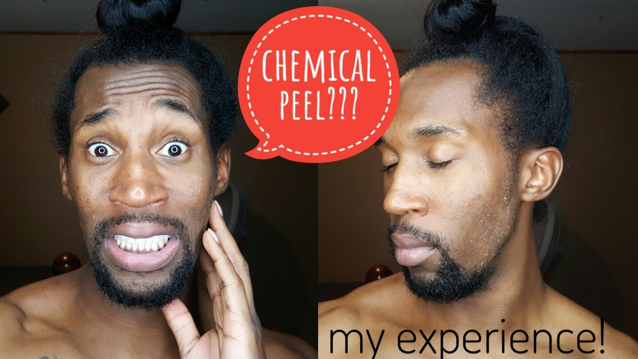 I Got A Chemical Peel Skin Care With Footage Youtube