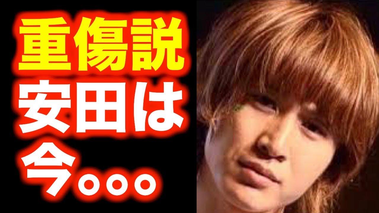 関ジャニ∞安田章大は重傷で入院中\u2049 渋谷すばるの会見後も未だに回復せず。錦戸亮も心配の色を隠せない\u2026