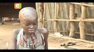 Msichana ahangaika kwa kukosa matibabu Kwale