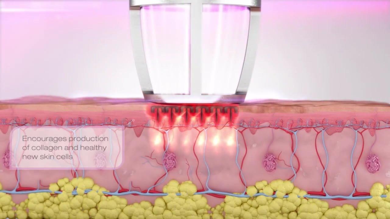 CO2 RE - фракционный лазер для шлифовки от Candela