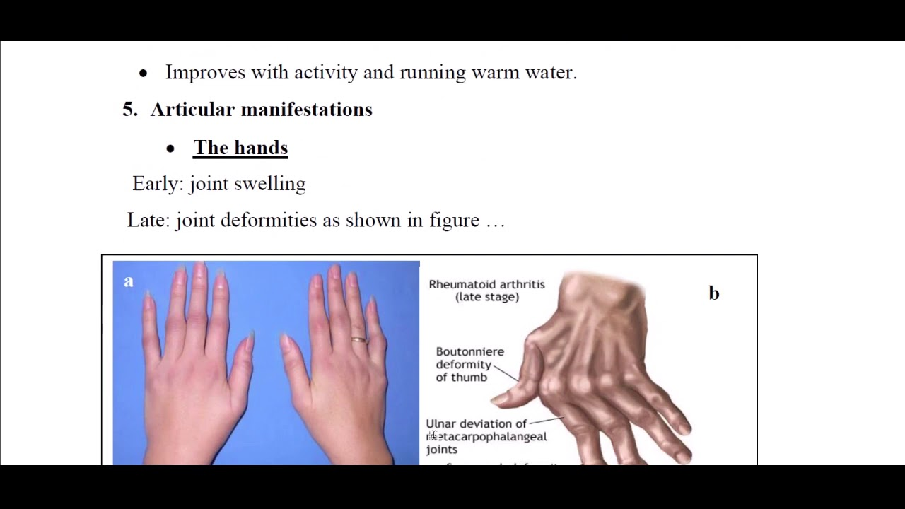 Illustrated Rheumatology Internal Medicine In Arabic