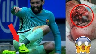 The Ugly Side of Football ● Horror Injuries ● Tackles & Fouls | HD