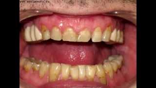 Лечение зубов   чувствительность(00:12 - повышенная чувствительность зубов 00:36 - кариес зубов 00:42 - клиновидный дефект 00:58 - отбеливание зубов..., 2015-07-03T10:40:28.000Z)