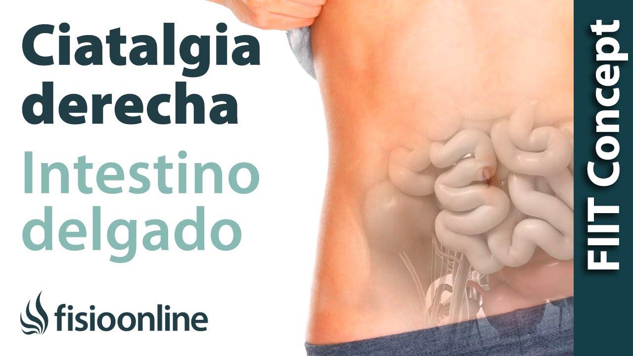 Neuropatía femoral y msp