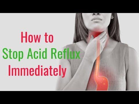 How to Stop Acid Reflux Immediately – Gerd, Gastroesophageal Reflux Disease