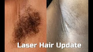 6th Laser Hair Removal Treatment on Brown Skin| Laser Away Update