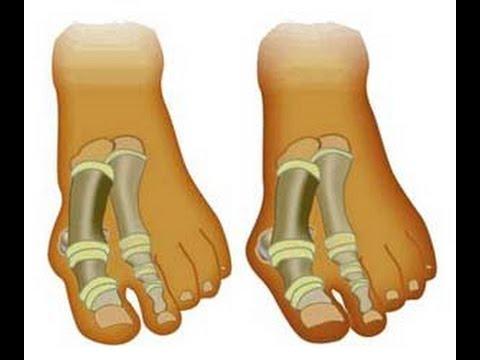 Чем остановить рост косточек на ногах