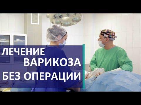 Лечение варикоза. 💉 Самый современный метод лечения варикоза без операции.